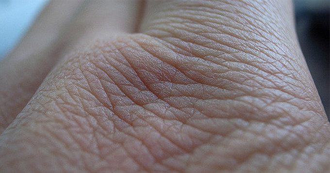 Close up photo of a piece of skin on a person's hand