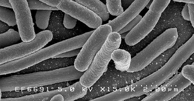 Black and white microscopic image of bacteria