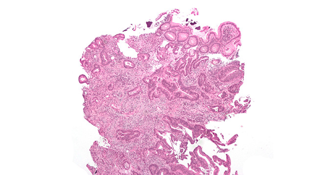 Micrograph of an invasive cecal adenocarcinoma — a type of colon cancer.